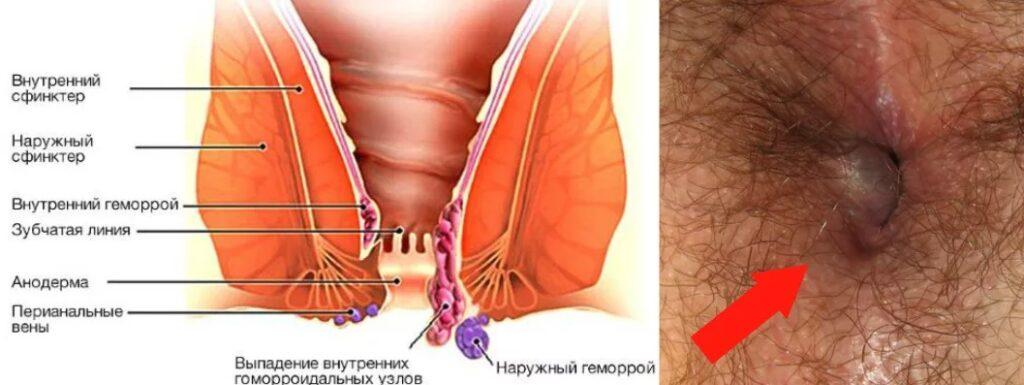 Фото геморроидального узла