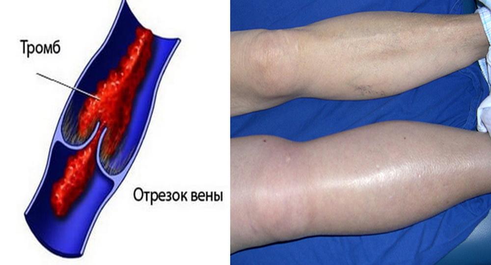 Изображение тромбоза