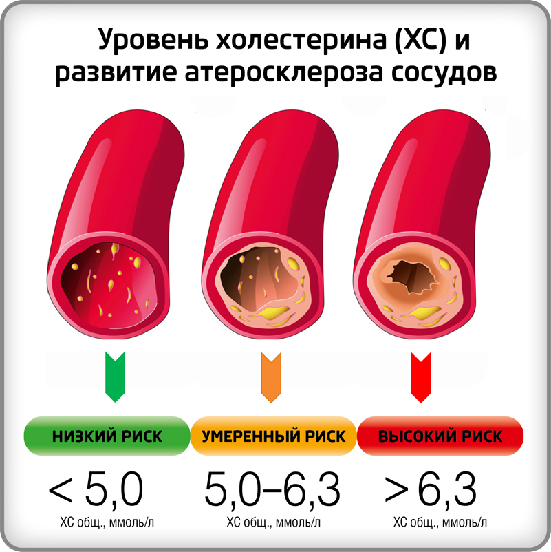 Повышение уровня холестерина в крови