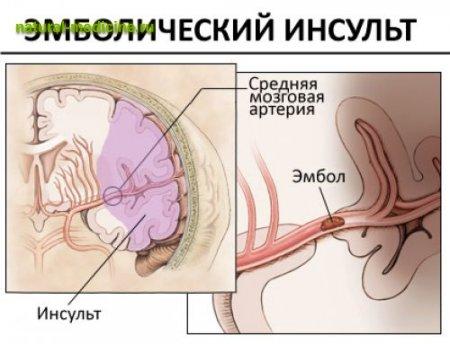 Визуальная структура эмболического инсульта