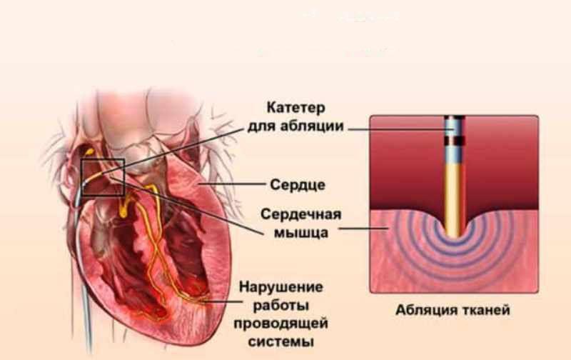 Абляция сердца